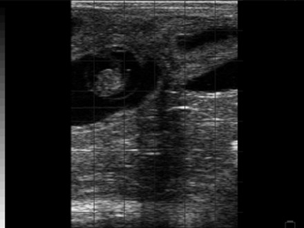 Fetus normal 33 Day Pregnancy BCF Easi-Scan
