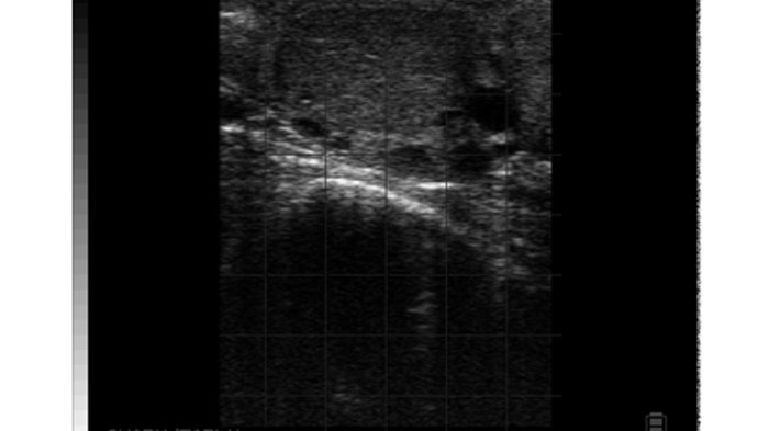 Ovary normal bovine CL and small peripheral follicles BCF Easi-Scan