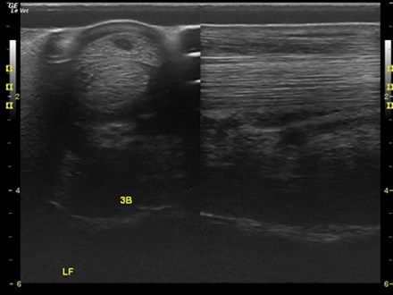 Distal limb normal equine comparison SDFT core lesion GE LOGIC e 12L