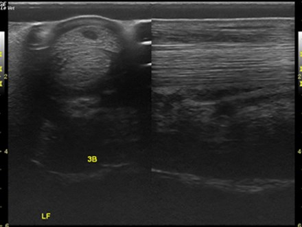 Distal limb comparison SDFT core lesion equine GE LOGIQ e 12L